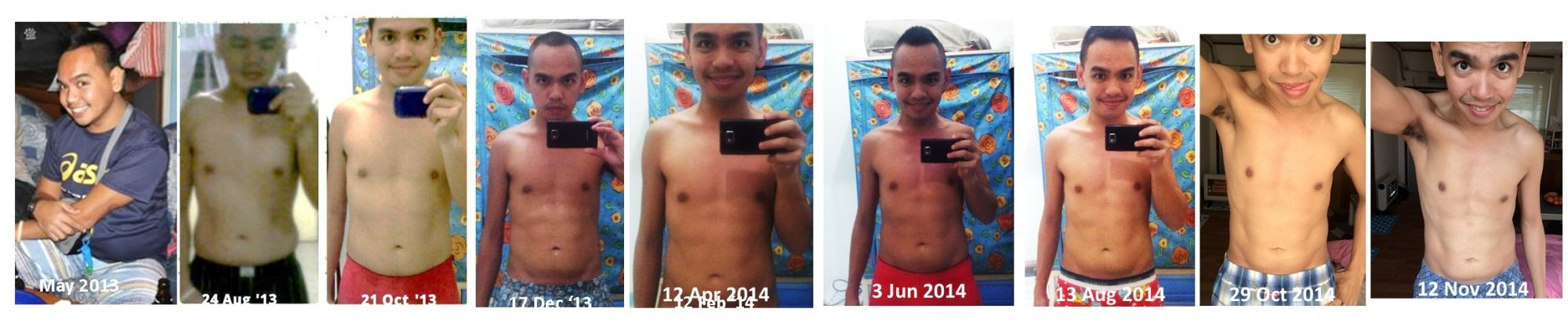 Weight loss surgery in patna